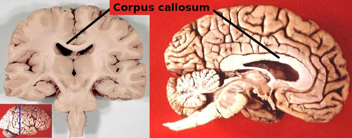 Key Players in Autism: I. the Corpus Callosum | Cortical Chauvinism