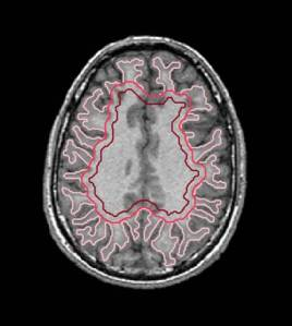 Parcellation of white matter