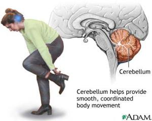 cerebellar symptoms