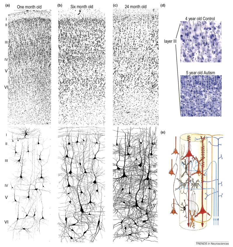 Características neuroanatómicas y neuropatológicas del autismo (2/2)
