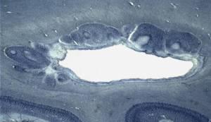 nodular heterotopias