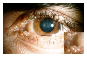eyelid papules