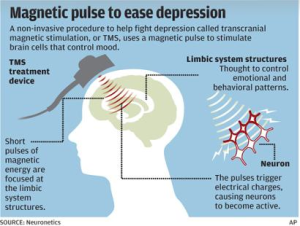 TMS depression