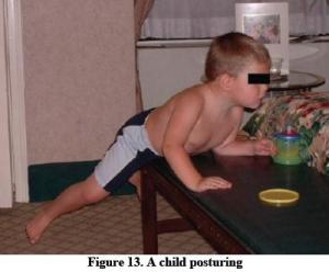 autism child posturing