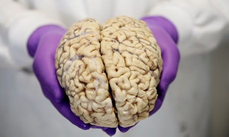 A brain at the Brain Bank