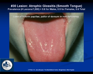 atrophic_glossitis