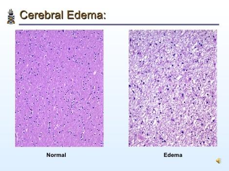 cerebral-edema