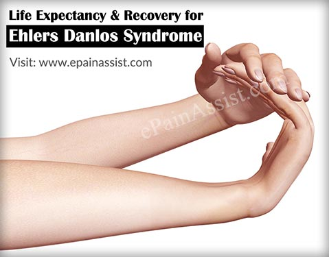Ehlers Danlos Syndrome and autism | Cortical Chauvinism