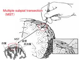 subpial transection