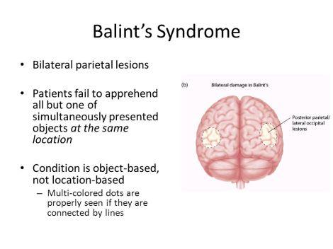 Balint's